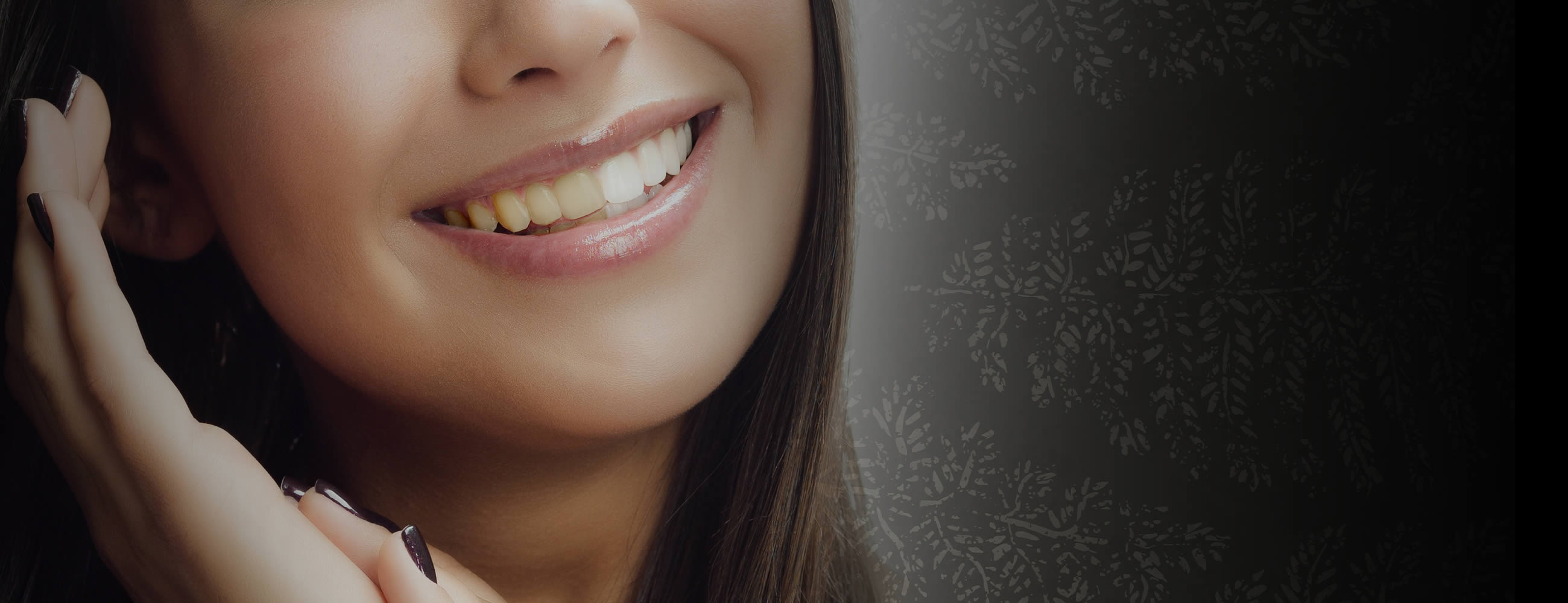 Teeth Whitening in Hampstead, North London