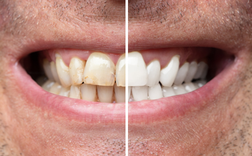 Examples of Teeth Whitening