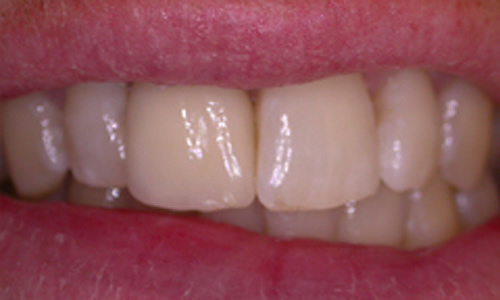 Close-up of restored teeth after dental implants at our dentist in Hampstead.