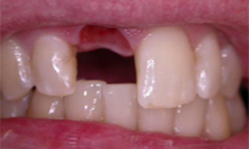 Close-up of missing teeth before dental implants at our dentist in Hampstead.